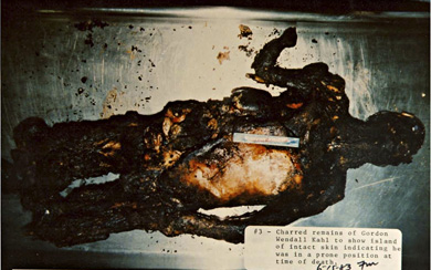 Gordon Kahl's charred and burned remains were reexamined after his exhumation. The island of unburned skin shows that Kahl's body was likely positioned against the floor at the time he was set on fire.